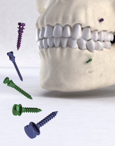 Ancotek Orthodontic Ancorage Mini-Screws