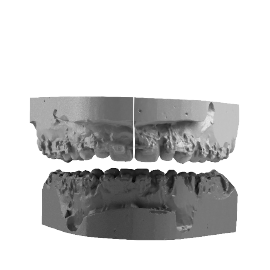 Frontal view of an intermediate occlusion