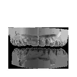 Vue frontale d'une occlusion intermédiaire