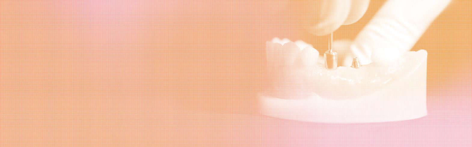 Banner_Formazione di implantologia  - Livello iniziazionedi