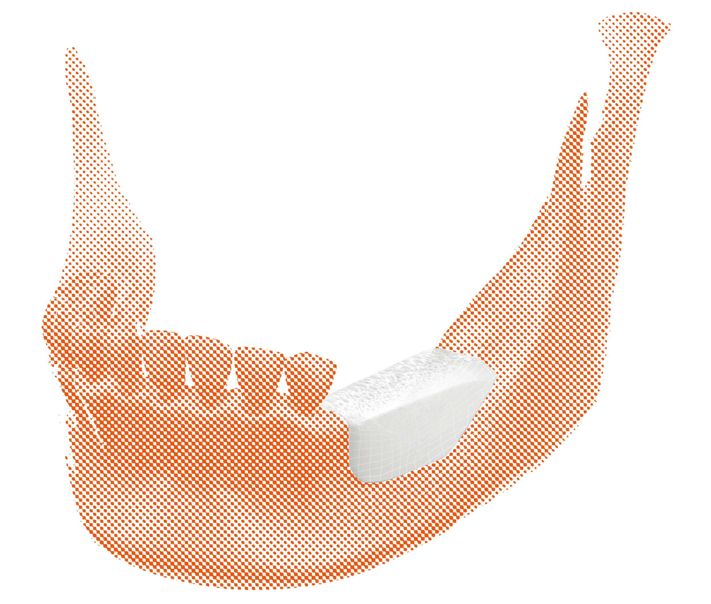 BIOBank customized graft mounted on the posterior sector of the mandible