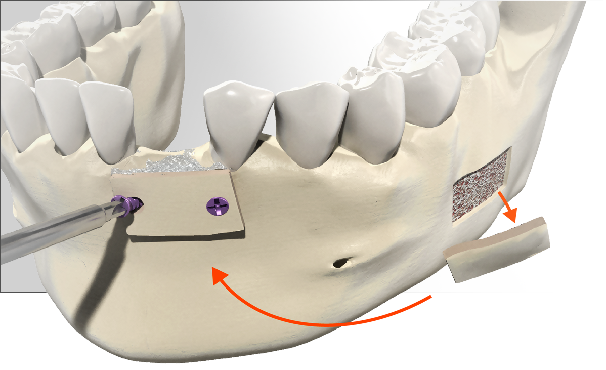 Indications_Bone block harvested from the retromolar area and onlay completed in the anterior mandibular region from the retromolar area and onlay completed in the anterior mandibular region