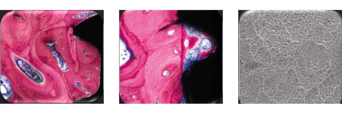 Temas clínicos_Carga inmediata_Cápsulas SA2