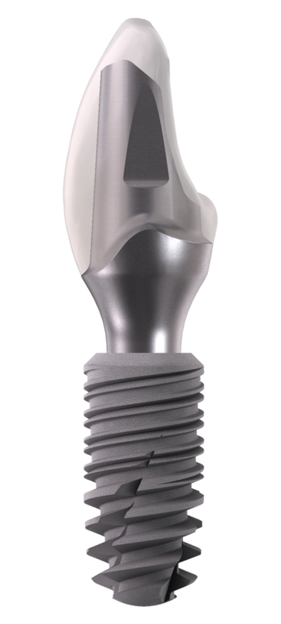 Implant-InKone-Abutment-Protesi